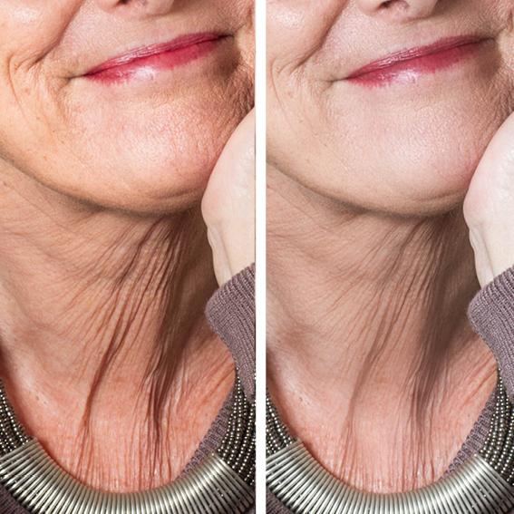 billedbehandling, retouchering, retouch skin, hud, Zenani