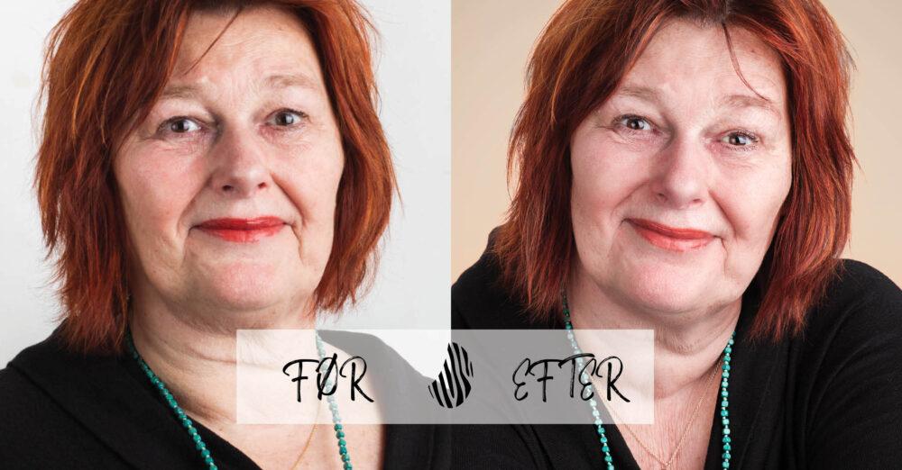 Jette Rosborg, før og efter, zenani kvindebilleder